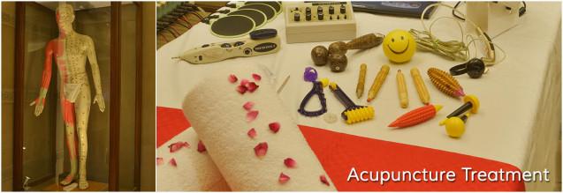 Acupuncture–Acupressure