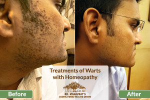 Treatments of Warts with Homeopathy-Cosmic Homeo Healing Center