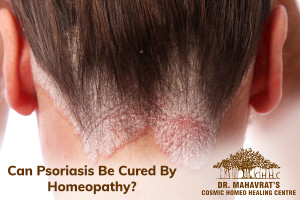 Psoriasis Be Cured By Homeopathy-Dr Mahavrat Patel
