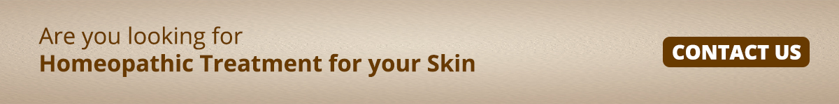 Homoeopathic Treatment for Skin