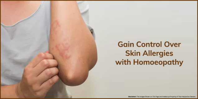 Gain Control Over Skin Allergies with Homoeopathy