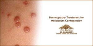 Homeopathy Treatment for Molluscum Contagiosum-Dr Mahavrat Patel
