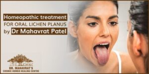 homeopathic-treatment-for-oral-lichen-planus-by-dr-mahavrat-patel