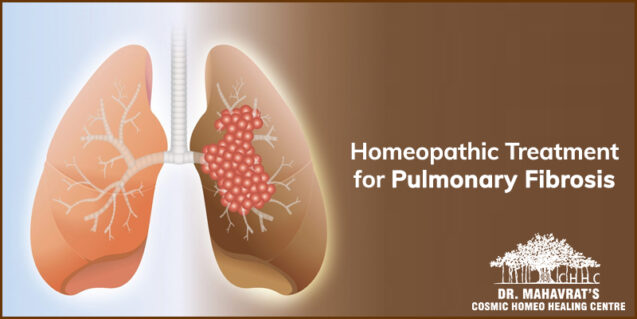 Advantages of Homeopathic treatment for Pulmonary Fibrosis